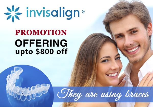 600$ off Invisalign Promotion banner