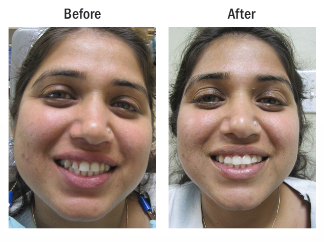 Cosmetic Dentistry Before and After Set