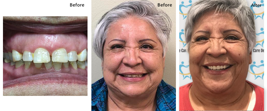 Before and After Dental Treatment Images at Gentle Care Dentistry