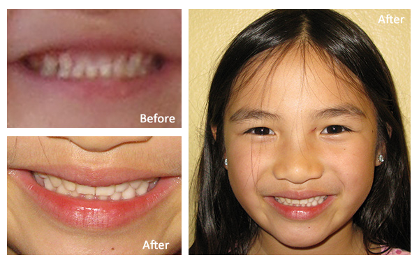 Dr. Brianne Luu Tooth Whitening