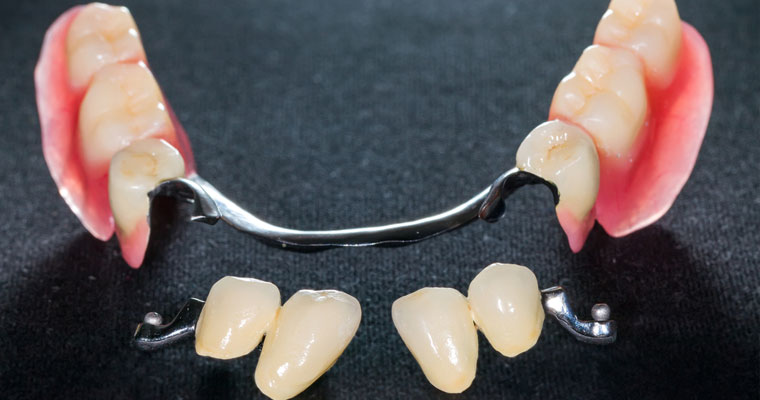 Azusa patients can achieve a new smile with Dentures