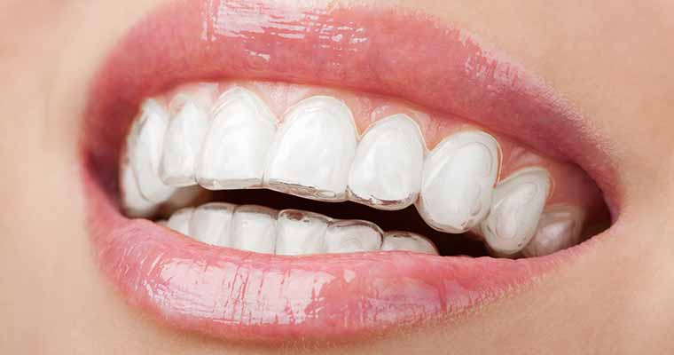 Patients in Rosemead CA can benefit from clear braces