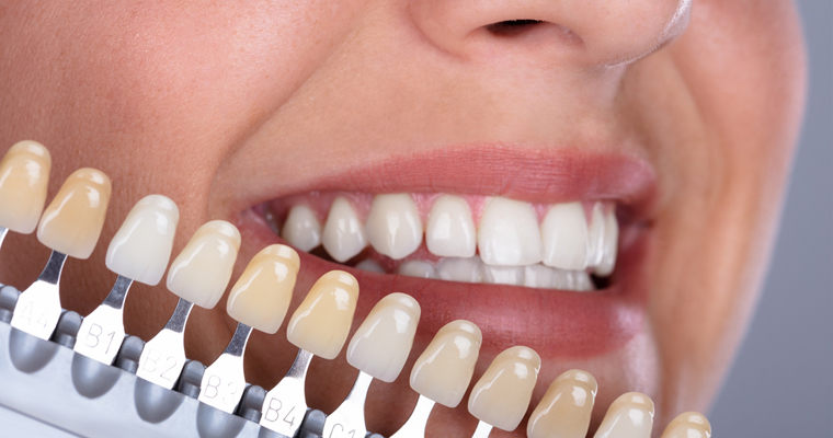 patients can achieve smile makeovers with cosmetic services