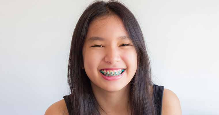 Improving Smiles in Duarte CA with Dental Braces