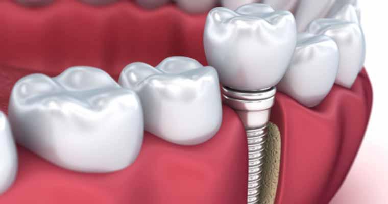 Dentist describes Dental Implants
