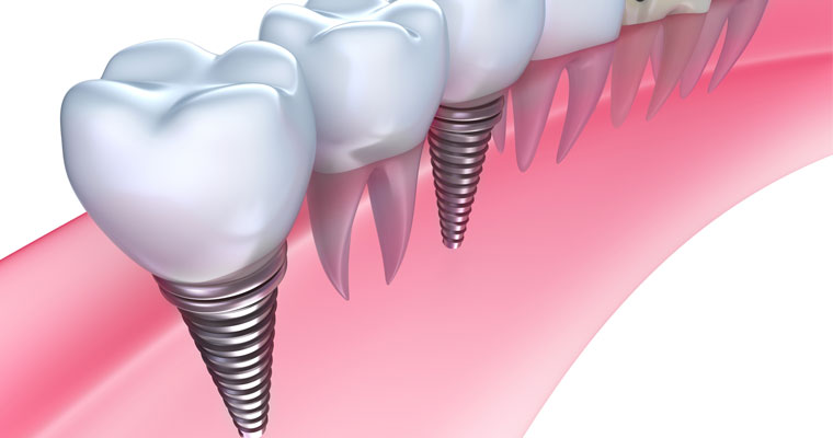 Dentist reviews the cost and expectations of dental implants