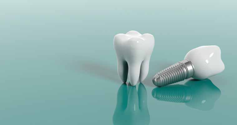 Dental implants be used for dentures