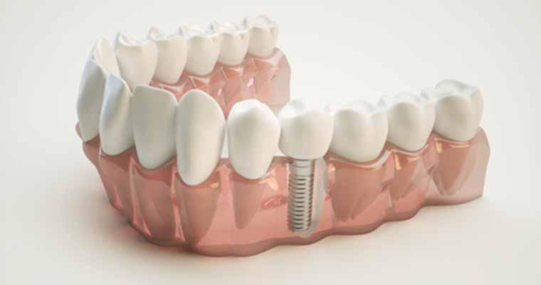 Tooth implants provide dental restoration