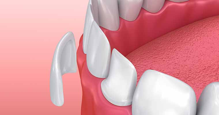 Dr. Brianne Luu of Gentle Care Dentistry offers patients in Rosemead, CA, and the surrounding areas the option of dental veneers to improve the appearance of their smile quickly.