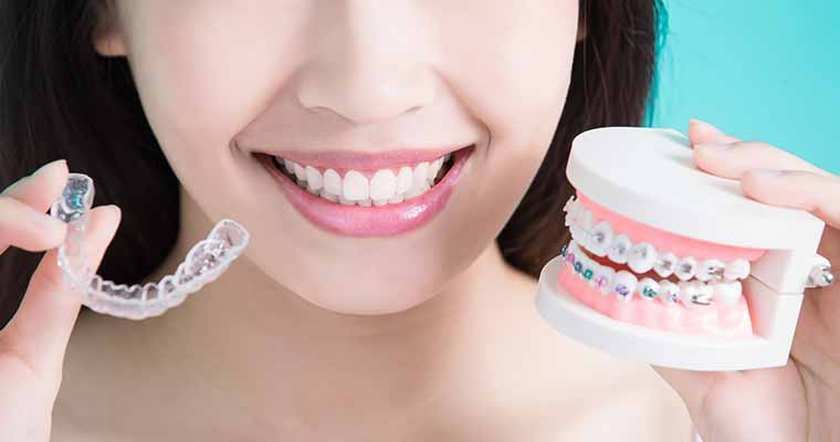Adult orthodontic patients should talk to their Azusa Dentist about braces