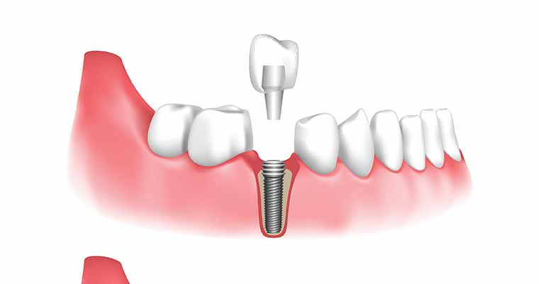 Good candidate for a Dental Implant