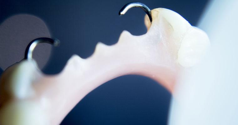 Dr Luu Describes how Dentures can help