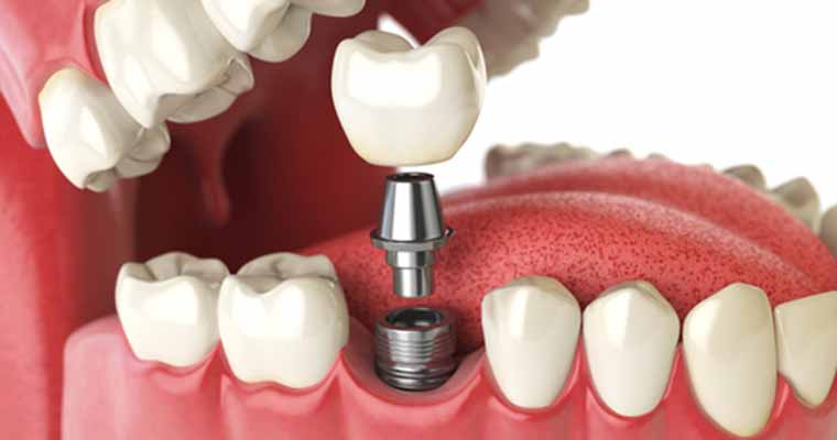 Benefits of implant teeth