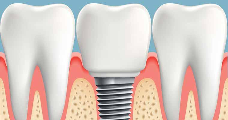 Difference between Implants vs. Dentures