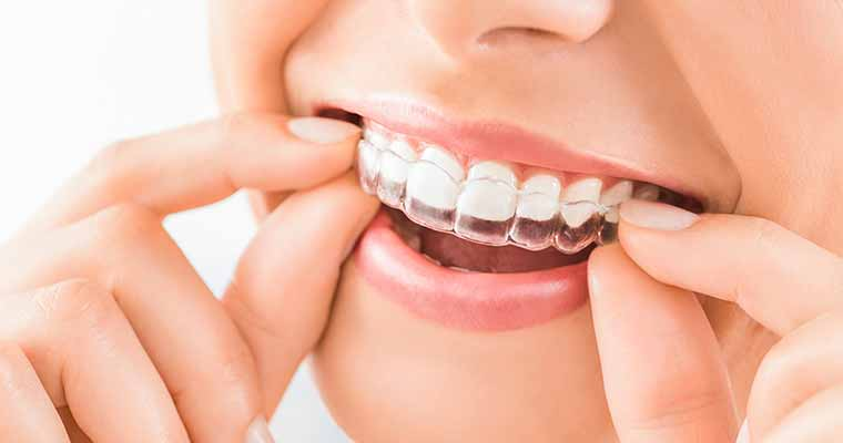Experienced dentist provides Invisalign braces for patients near Azusa