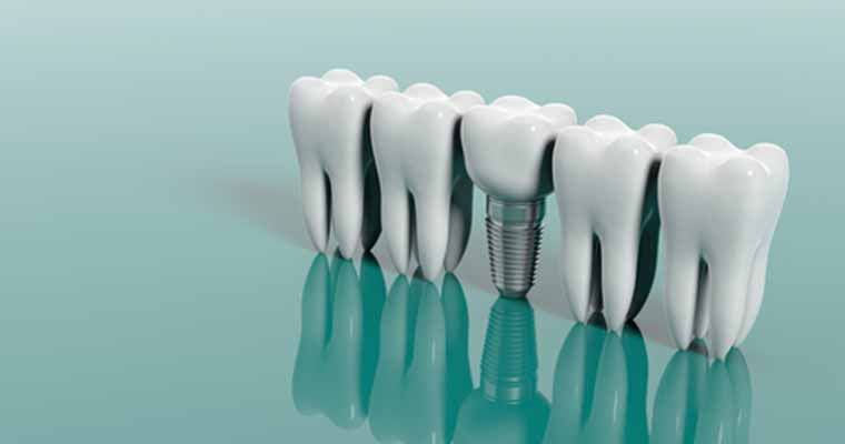 Dental implants are a popular choice for patients