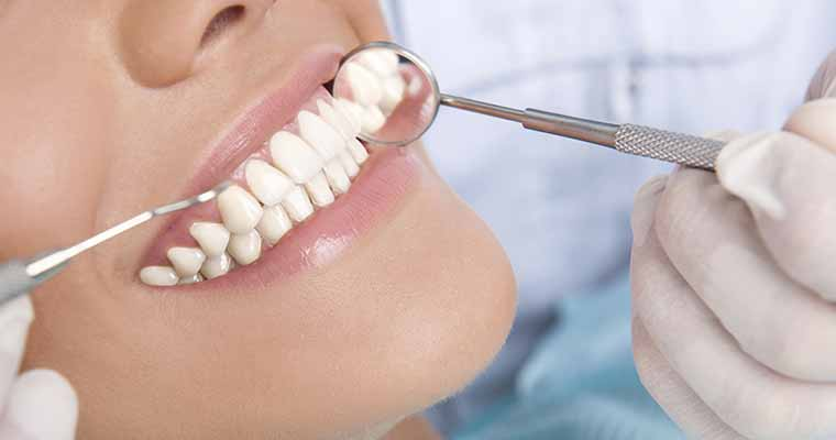Azusa area patients ask, what are tooth colored fillings?