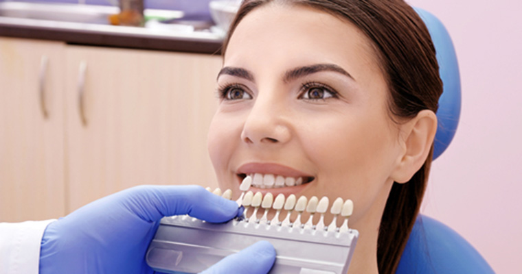 Benefits You Can Enjoy From Getting Dental Veneers in Azusa CA area