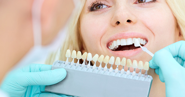Amazing Smile with Teeth Veneers in Azusa area