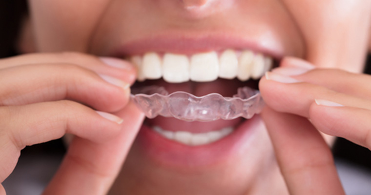 Invisalign for teens available from Azusa, CA dentist