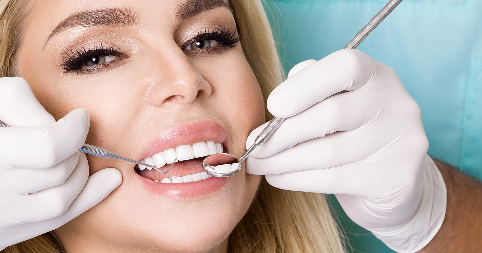 Porcelain Teeth Veneers at Gentle Care Dentistry in Azusa CA Area