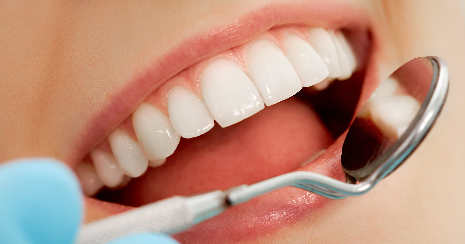 Get a Noticeably Whiter Smile, Safely, with Teeth Whitening Treatment at Our Dental Office in Azusa, CA Area