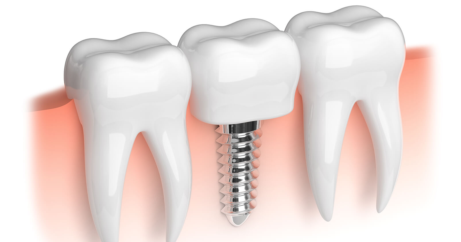 Where Can I Find a Dentist for Implants in Azusa, CA Area