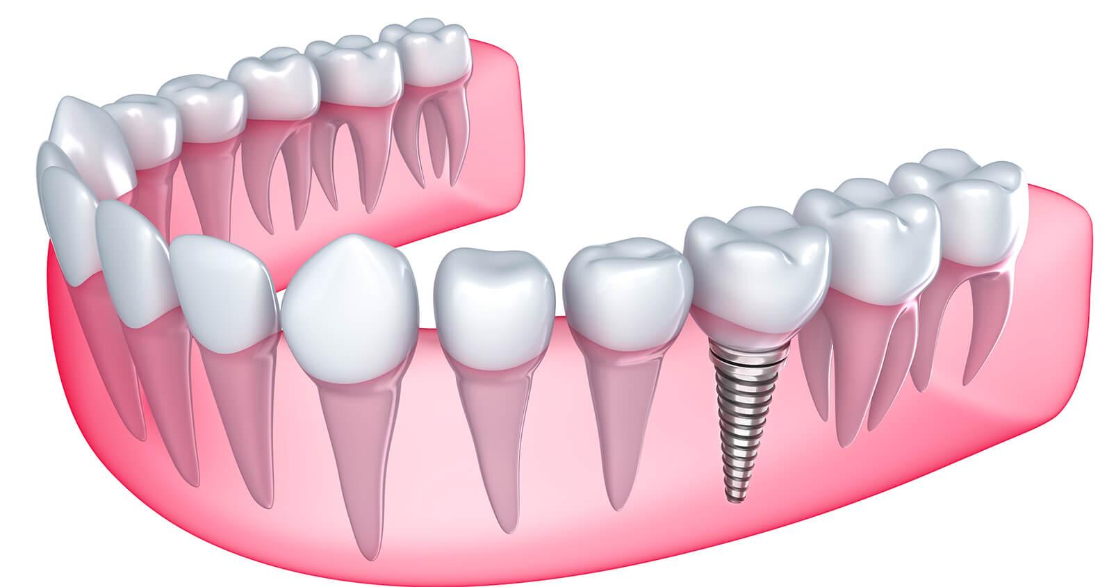 Teeth Implants in Azusa CA Area